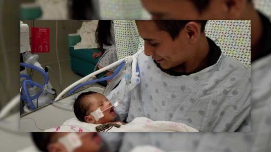 Infant taken from murdered mother's womb opens his eyes for the first time