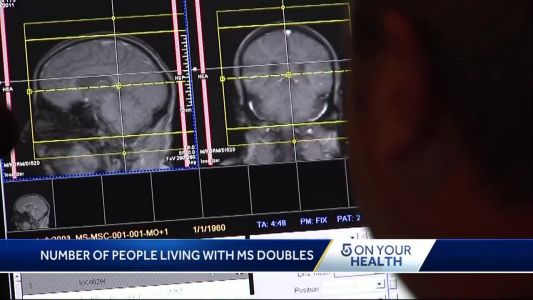Study finds double the number of people living with MS