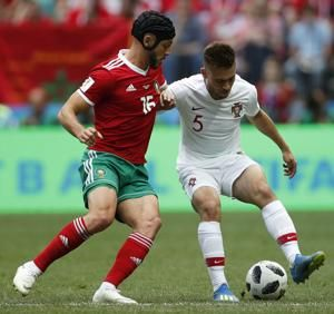 Player union blasts concussion management at World Cup