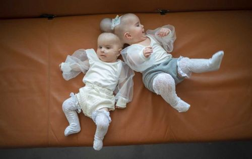 Sacramento twins conjoined by heads successfully separated