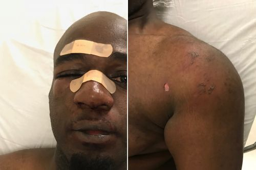 Another Rikers officer beat up by inmate during ambush