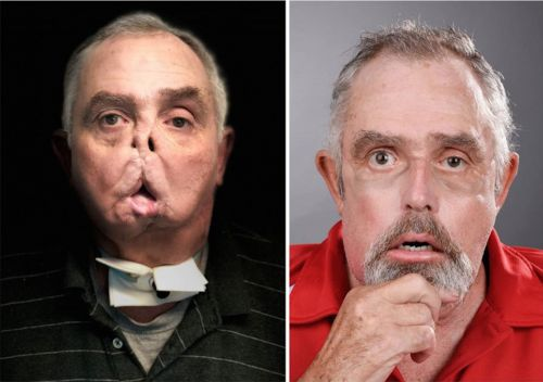 Man becomes world's oldest person to receive face transplant