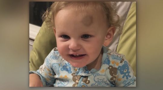 Child with rare blood disease finds perfect match for bone marrow transplant