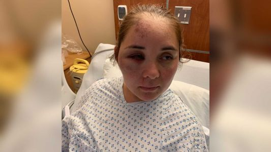 Mom beaten and knocked unconscious by son's 13-year-old bully, family says