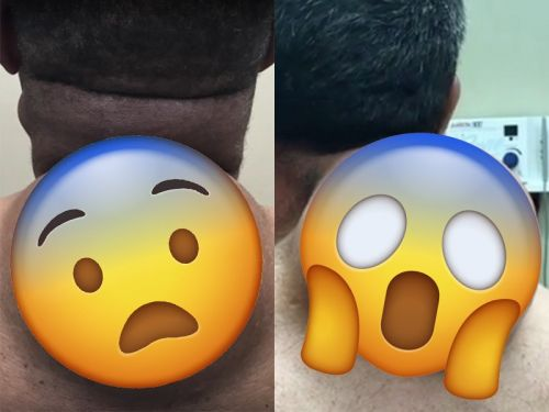 Dr. Pimple Popper has now seen two different patients with neck growths the size of bowling balls - here's what they are