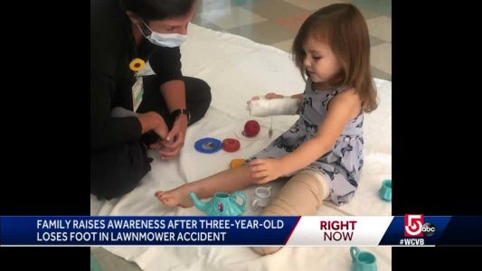 3-year-old recovering after losing part of leg in lawn mower accident