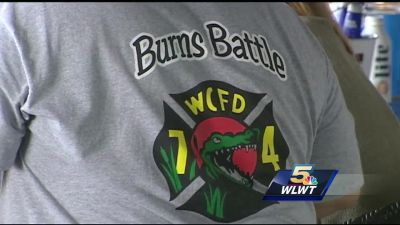 'Burns Battle' fundraiser honors firefighter who died of occupational cancer