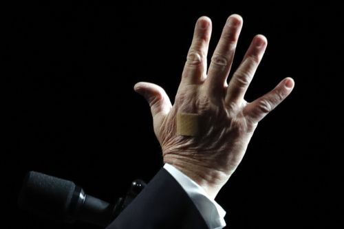Trump's bloody hand injury attracts armchair doctors