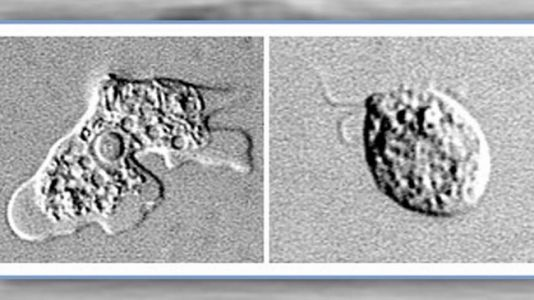 Brain-eating amoeba detected in Texas community's water supply