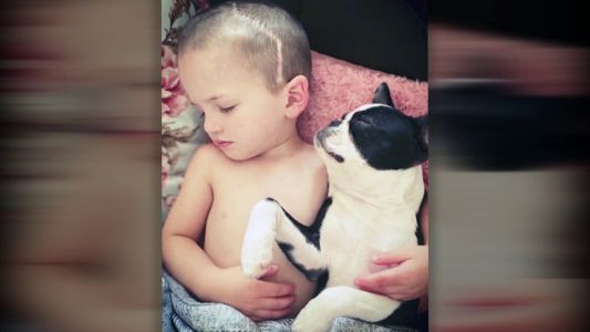 Young boy needs 2nd surgery to correct rare skull condition