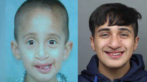 Teen born with double cleft palate has last surgery after 17 years